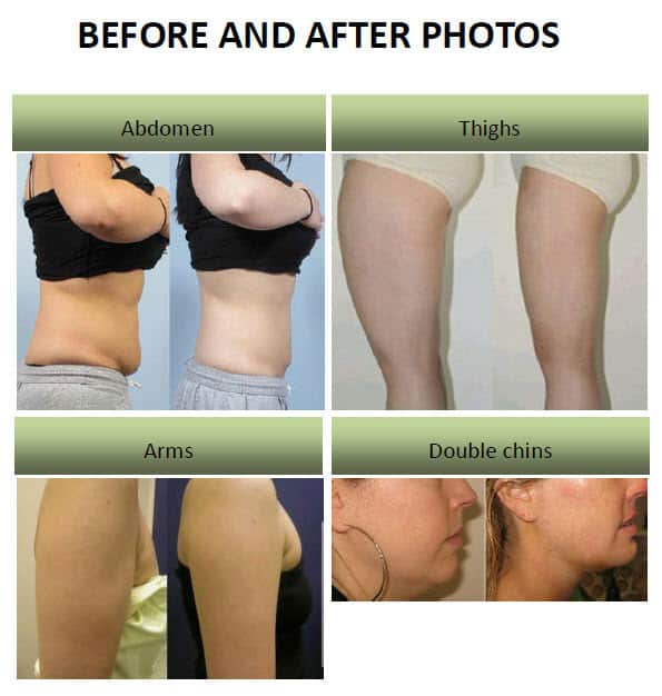 lipo-laser-before-after